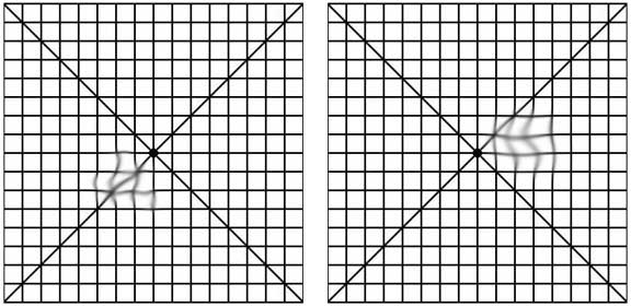 photograph about Printable Amsler Grid named Macular Degeneration - Drs. Bumgardner Boyle - Medical practitioners of